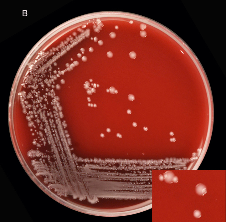 observing bacteria and blood microbiology Microbehunter magazine observing bacteria under the light microscope found in bacteria are difficult to see with a bright-field compound microscope for.